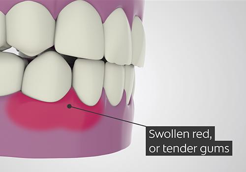 Colgate – Gum Disease Animation